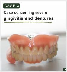 重度歯周病と入れ歯についての症例