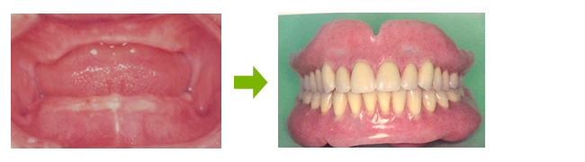 Dentures that truly fit will give you a brighter face
