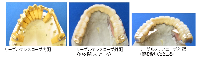 Dentures ideal for recovering chewing functions and protecting remaining teeth